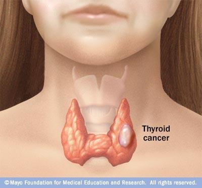 papillary thyroid cancer definition