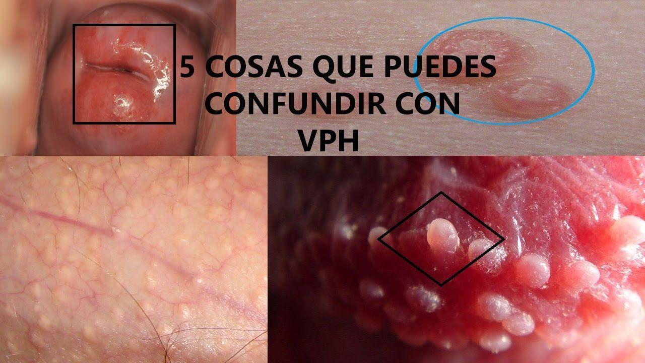 virus de papiloma humano labial