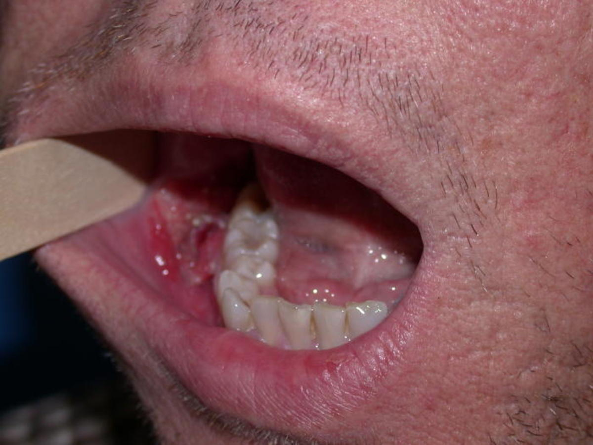 hpv in mouth picture)