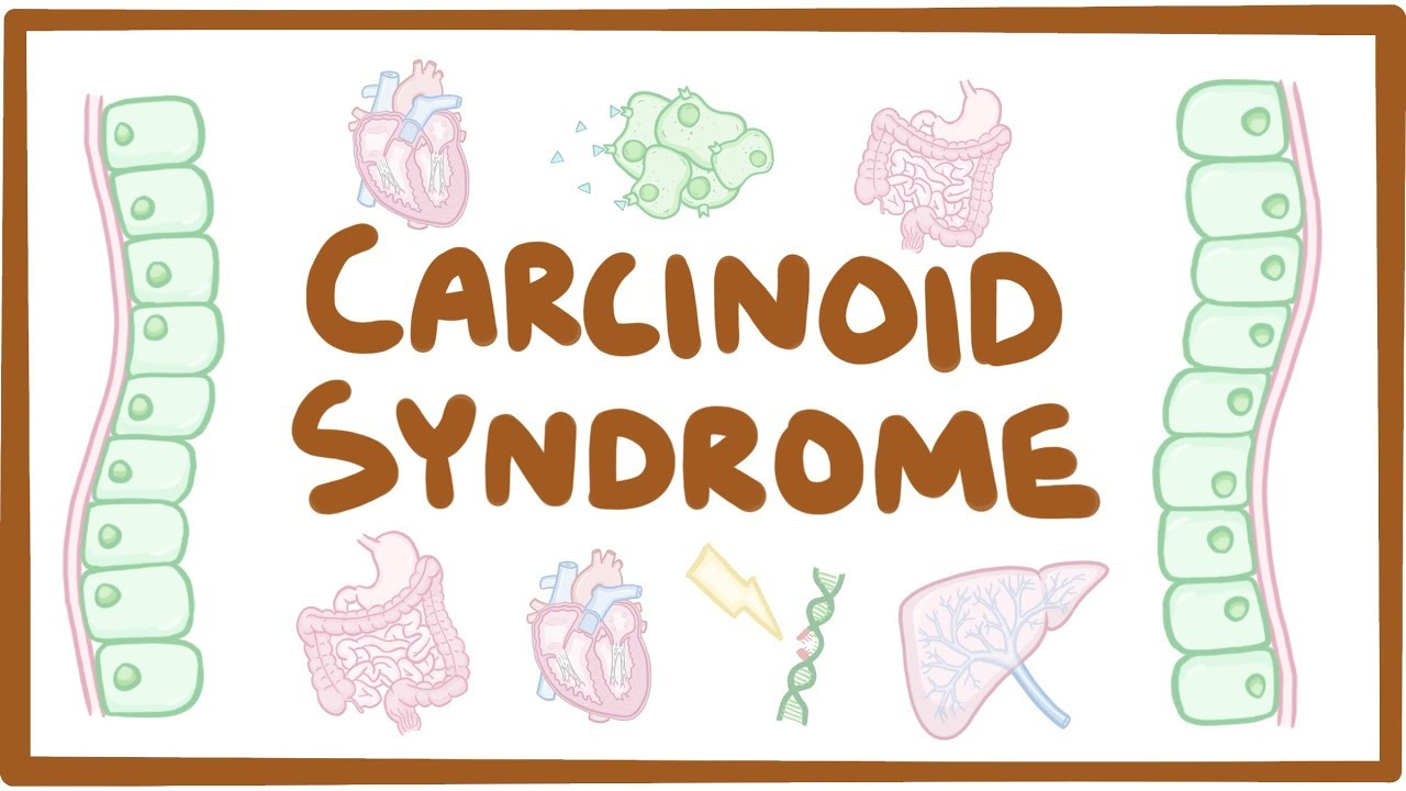neuroendocrine cancer early signs