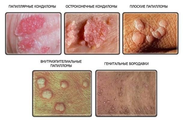 hpv virus aloe vera