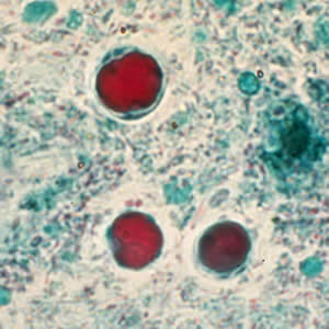 paraziti blastocystis)