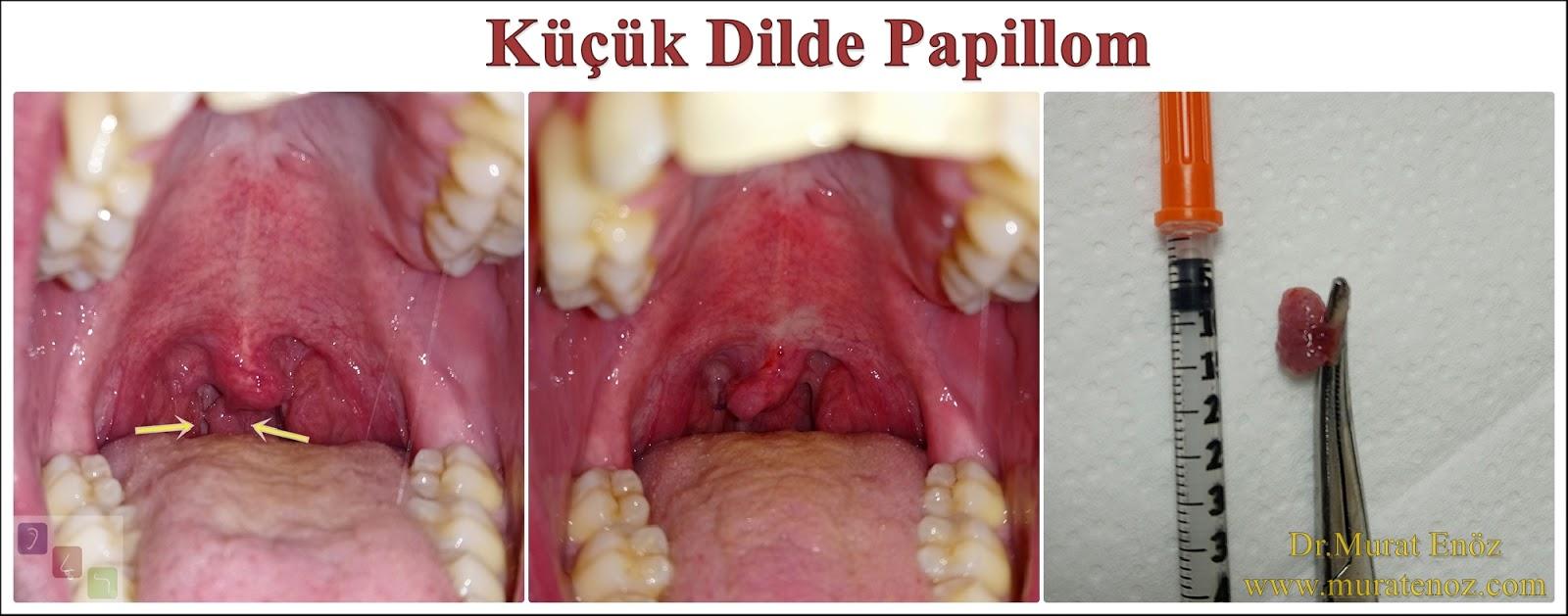 Papilloma în gât
