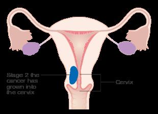 uterine cancer before menopause