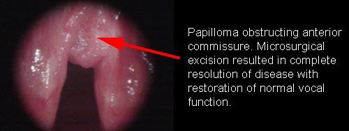 squamous papilloma vocal cord)