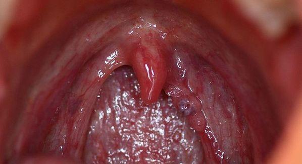 papilloma e faringite)