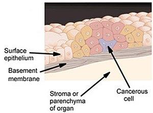 aggressive cancer and chemotherapy papilomas kas tas ir