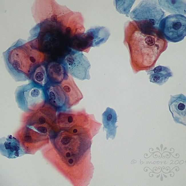 papiloma virus humano citologia