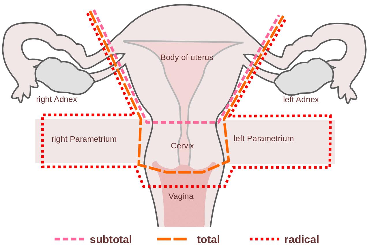 cervical cancer hysterectomy)