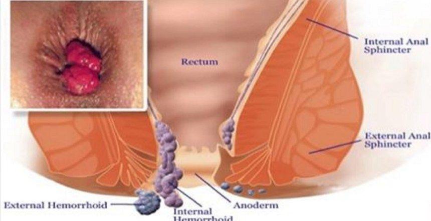 cancer colon y hemorroides tratament homeopat oxiuri copii