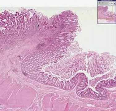 cancer colorectal adenocarcinoma)