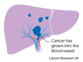 cancer in hepatic portal vein
