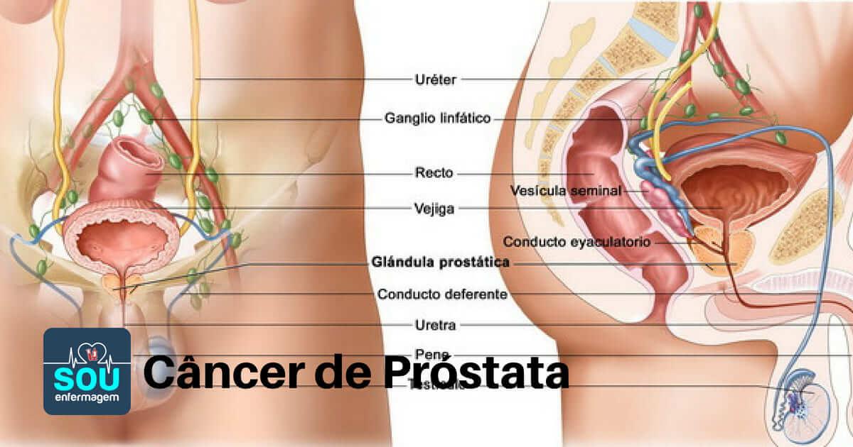 cancer prostata vesicula seminal