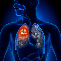 Primele simptome ale cancerului de plămâni. Mergi de urgenţă la medic!