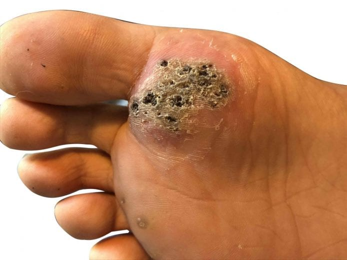 warts on hands that wont go away)