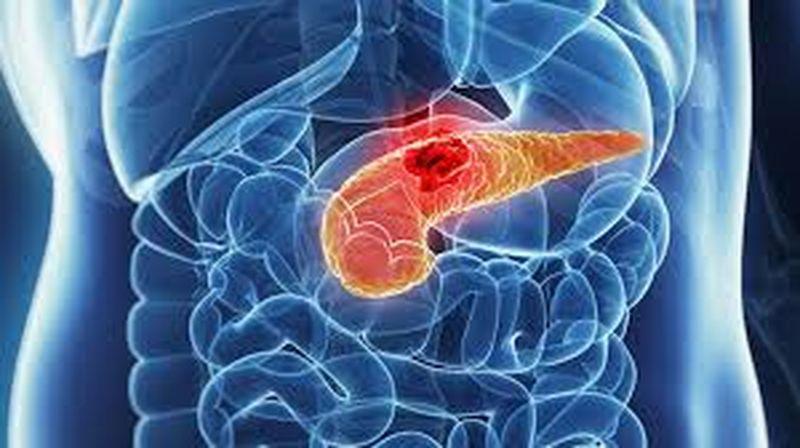 cancer pancreas simptome tratament