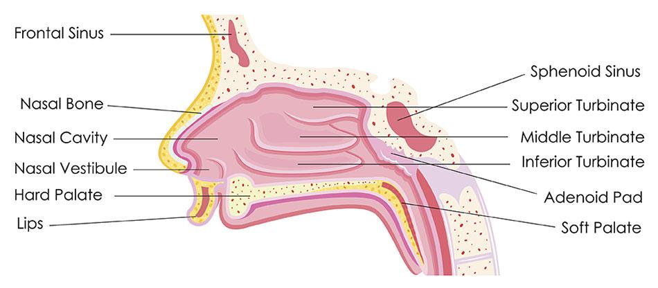 sinus papilloma symptoms)