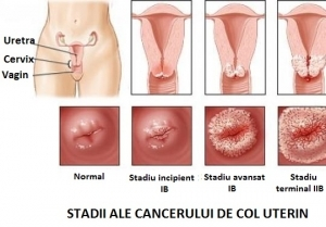 simptome cancer ginecologic