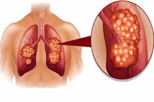 cancerul bronsic simptome