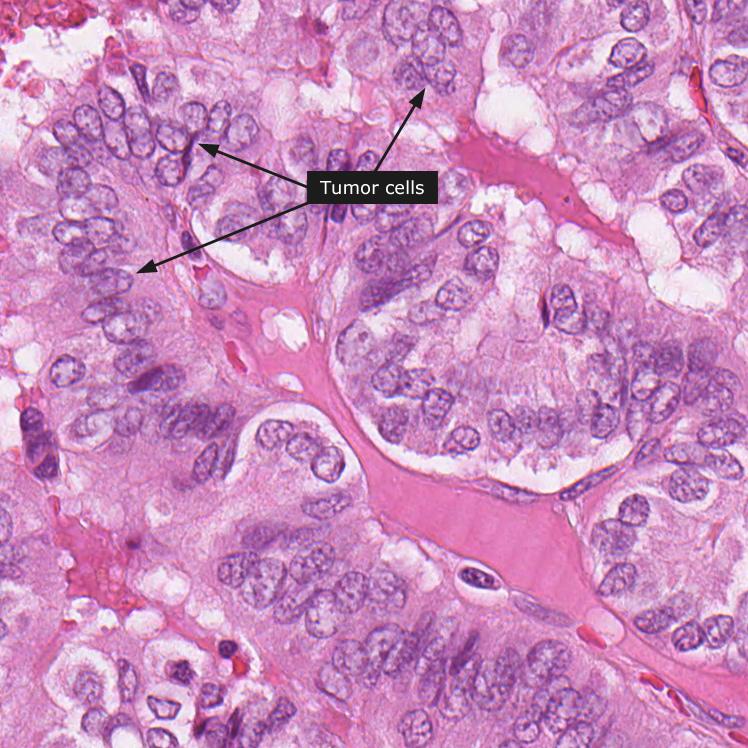 papillary thyroid cancer histological subtype)
