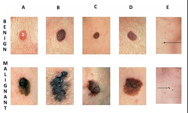 caracteristicas virus papiloma humano papilloma breast infection