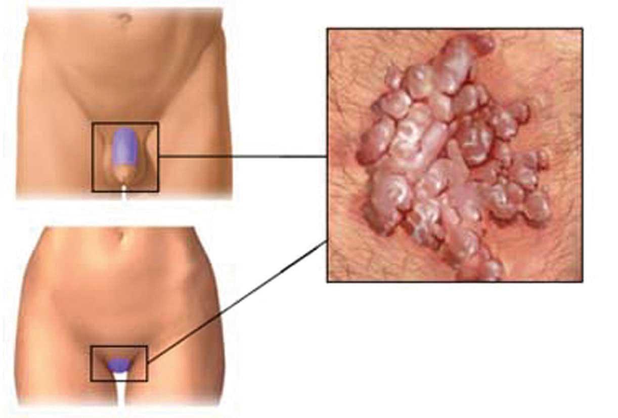 papilloma virus donne gola