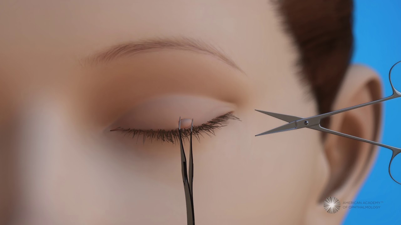 surgical removal of eyelid papilloma)