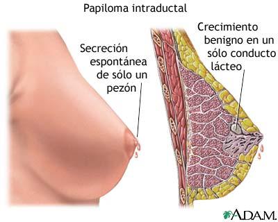 papiloma intraductal en hombres)