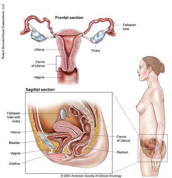 cervical cancer bladder