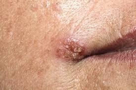 papiloma humano en hombres sintomas