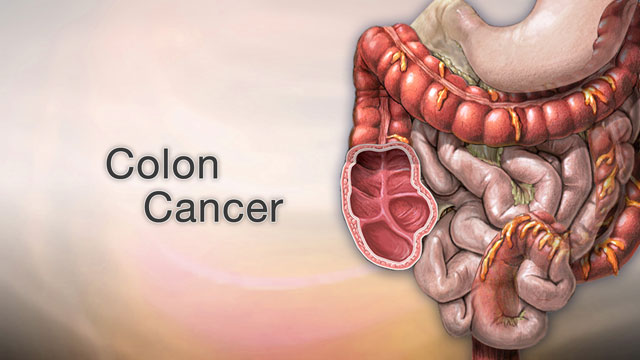 colon cancer abdominal lump)