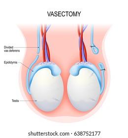Varice testiculare din regiunea inghinala
