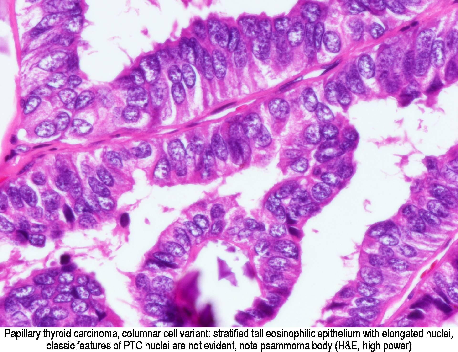 biologie tiroidian
