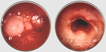 tracheal papillomatosis)