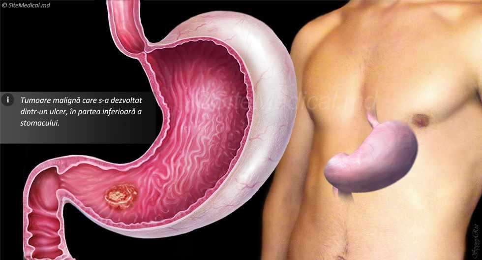cancerul gastric manifestari papillomavirus homme symptome