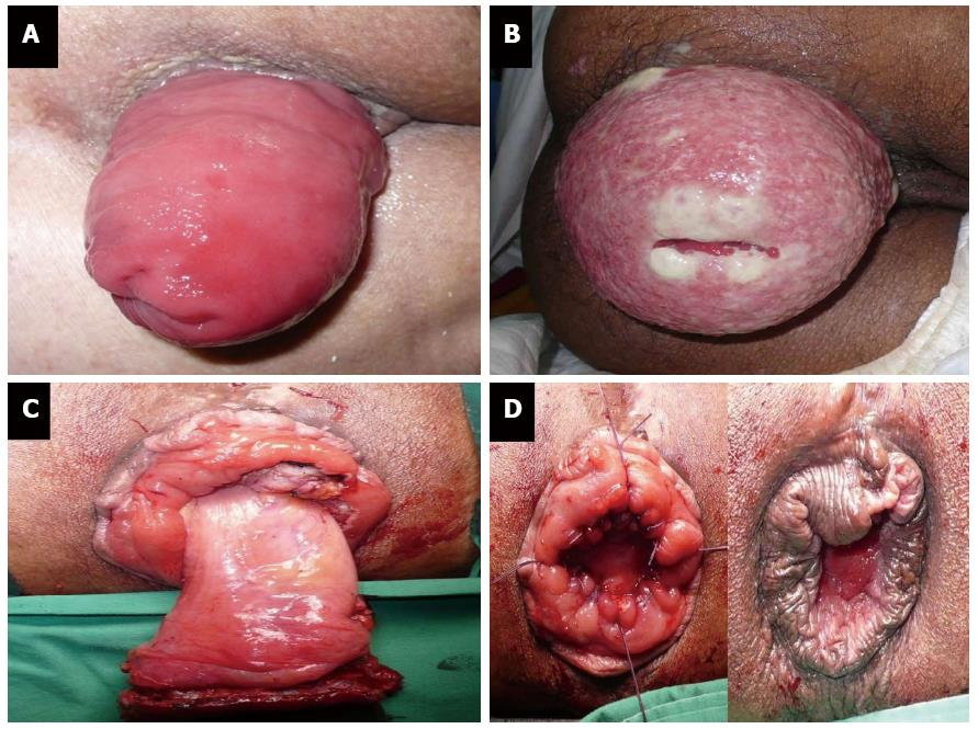 cancer of rectal prolapse