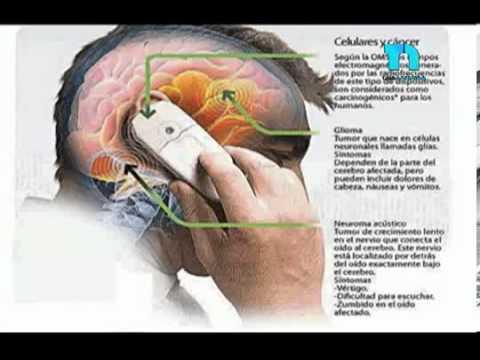 cancer cerebral por uso de celulares)