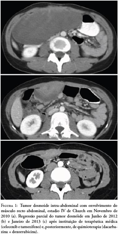 cancer parede abdominal)