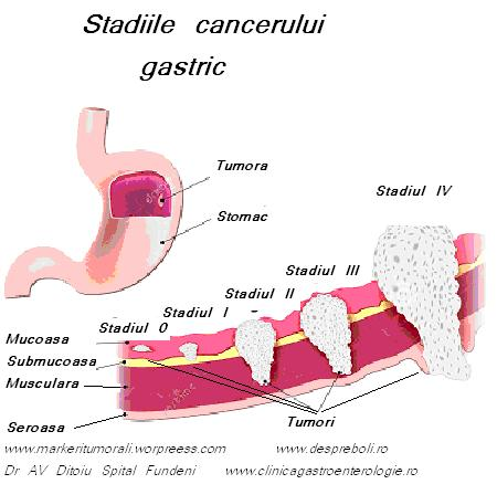 cancer gastric stadializare)