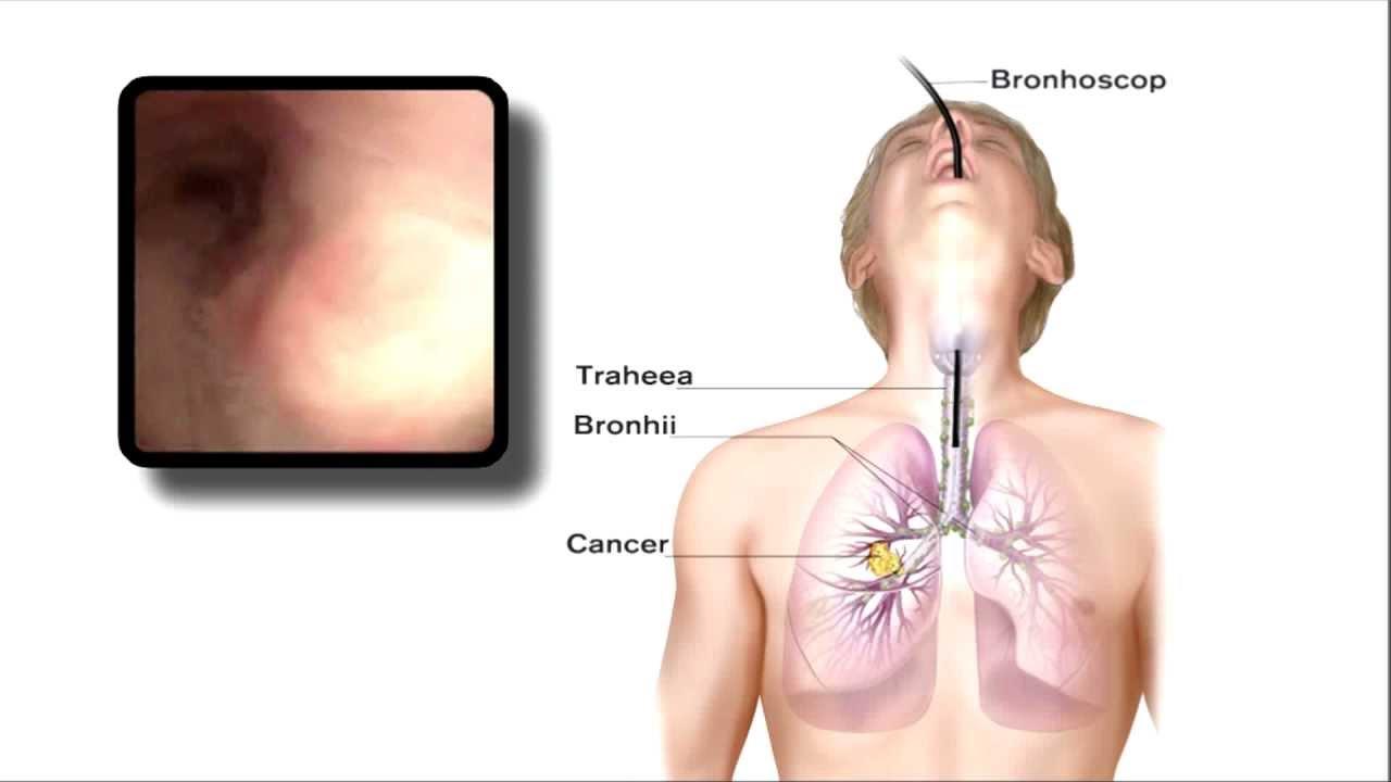 cancerul pulmonar operatii