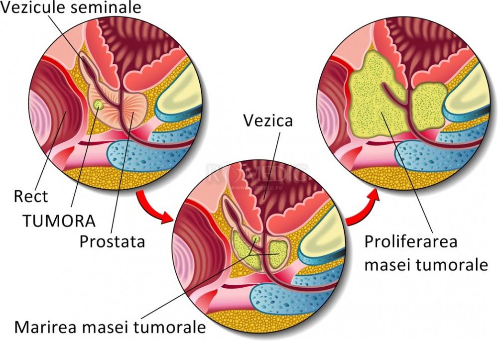 Hiperplazie prostata