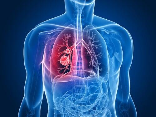 cancer pulmonar femei)