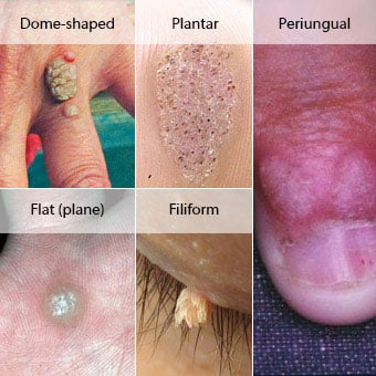 hpv wart removal