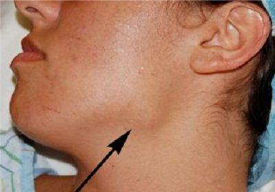 Cancerul la gât (cancerul faringian / cancerul laringian / cancerul amigdalian)