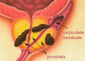 Cancer de prostata malign hipertrofie