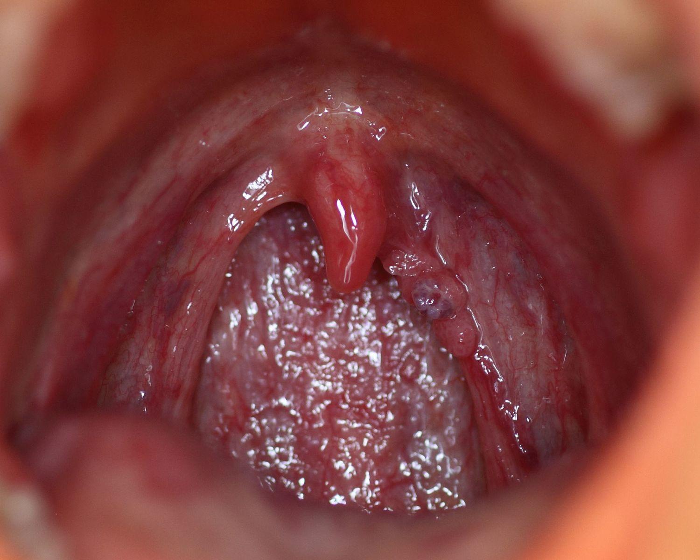 human papillomavirus disease