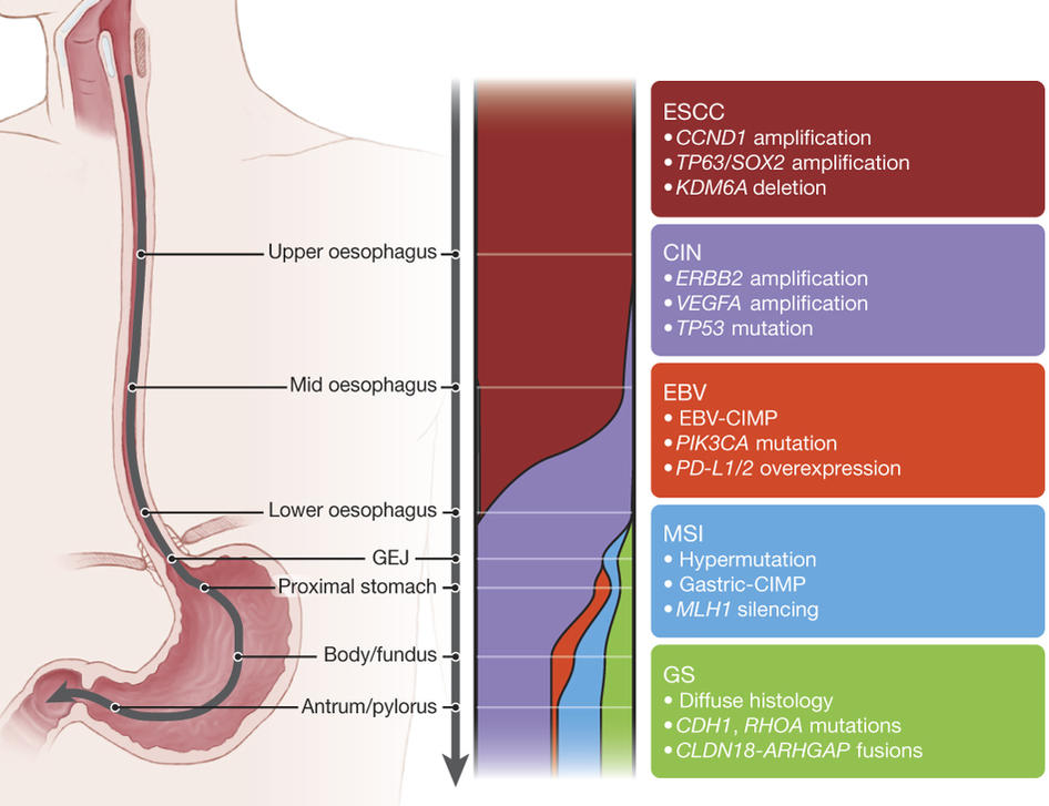hpv causes esophageal cancer)