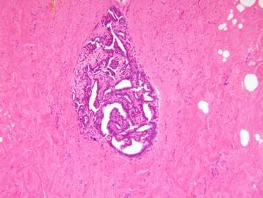 breast papilloma libre pathology)