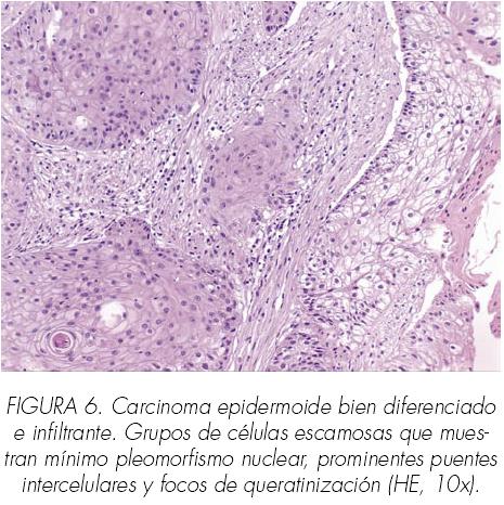 cancer renal anatomia patologica)