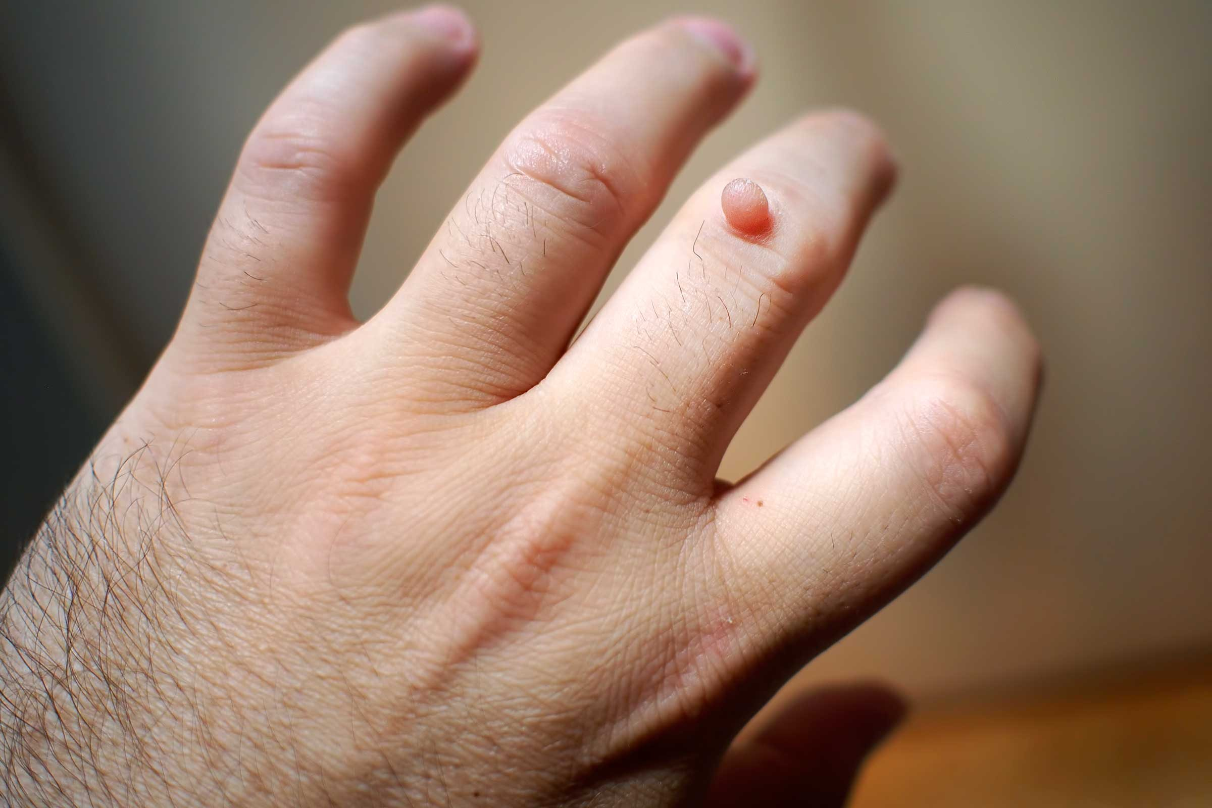 warts on hands only)